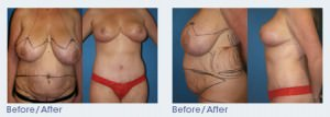 Breast Reduction San Diego
