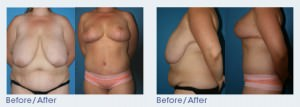 Belt Lipectomy San Diego