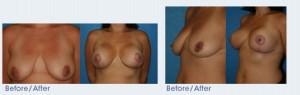 Breast Lift San Diego