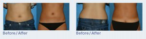 Liposuction San Diego